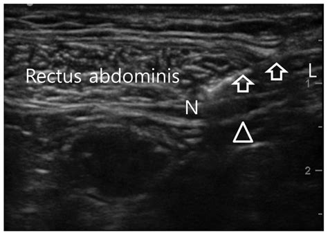 Diagnosis and Treatment of Abdominal Cutaneous Nerve
