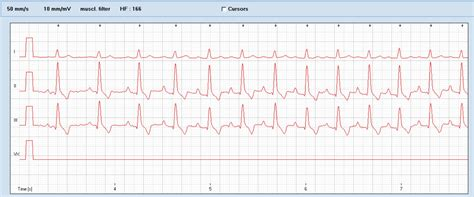 Paroxysmal supraventricular tachycardia in an old Bouvier