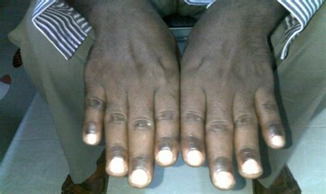 Generalized Hyperpigmentation, in Sudanese Patient with