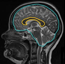 Corpus Callosum Cross-Section Correlated With Cognitive