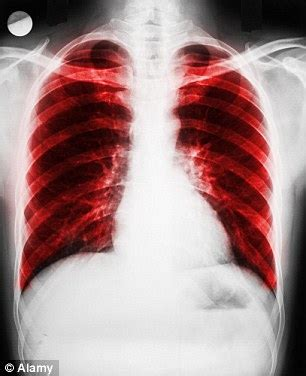 New hope for lung disease sufferers