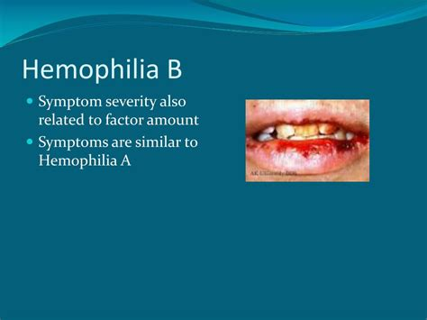 PPT - Bleeding Complications and Prevention PowerPoint